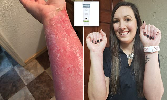Woman, 28, who suffered burns, has been healed by MILK UDDER